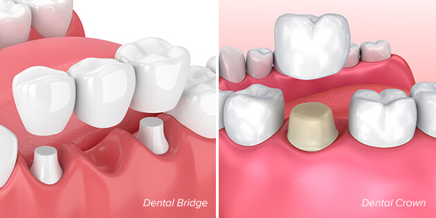 illustration showing an example of a dental bridge and a dental crown